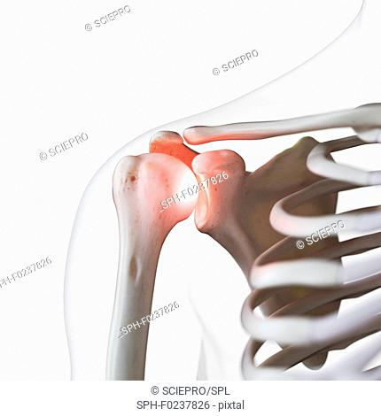 Illustration of a painful shoulder joint