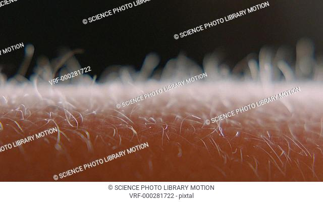 Close-up of fine hairs on the human arm raising