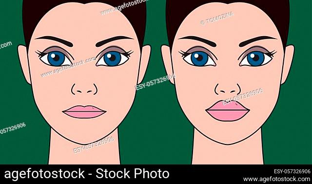 Plastic surgery to increase lips, cheiloplasty. Injections in thin lips, hyaluronic acid, correction of thin lips. Vector illustration before and after