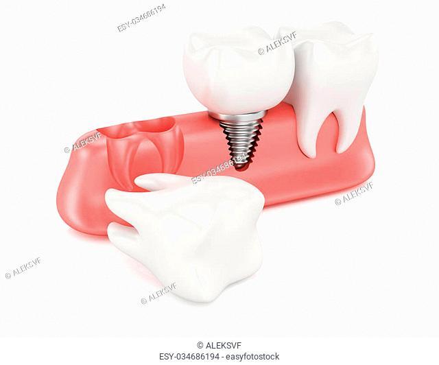 Dental implantation concept isolated on white background. 3d rendering illustration