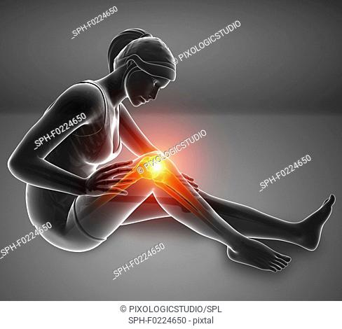 Woman with knee pain, illustration