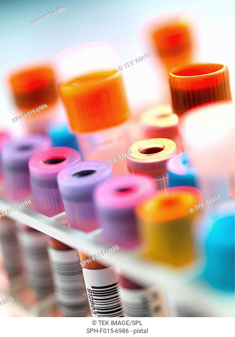 A variety of human medical samples awaiting testing in a laboratory