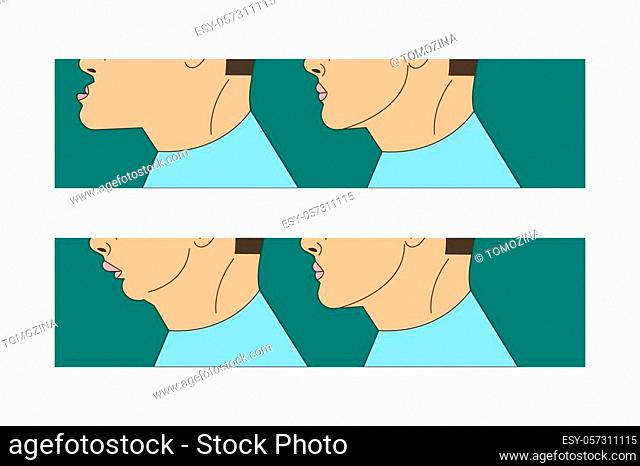 Mesial and distral bite, man with malocclusion, lower jaw extended forward, bite correction by braces. Vector illustration