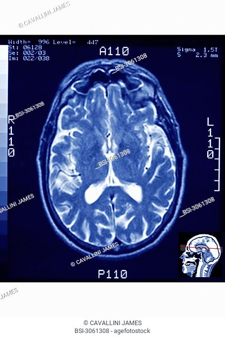 Axial section of a human skull visualized by MRI - Are visible : the brain and the frontal sinuses