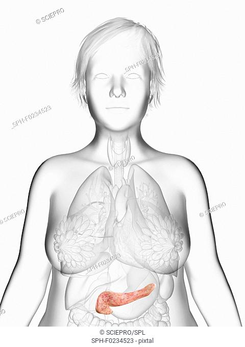 Illustration of an obese woman's pancreas