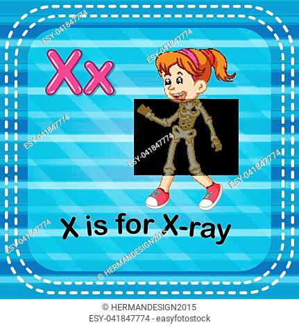 illustration of Flashcard letter X is for x-ray