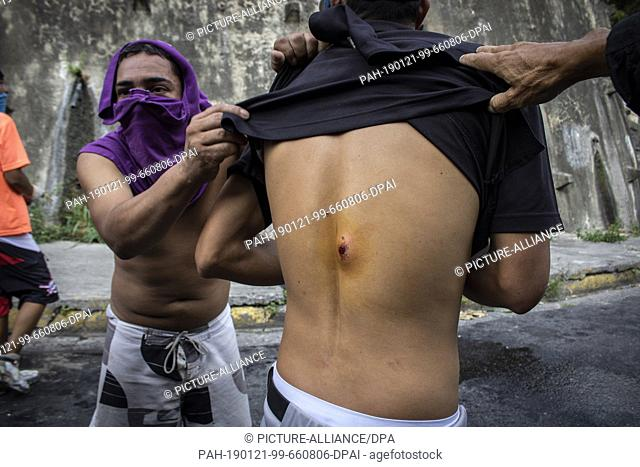 21 January 2019, Venezuela, Caracas: Masked demonstrators show an injury by a shotgun on the back of a man in a protest in support of a mutiny of national...