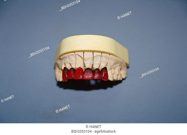 DENTAL PROSTHESIS<BR>Photo essay.<BR>Wax model. Prosthesis with sculpted wax to obtain the correct form.