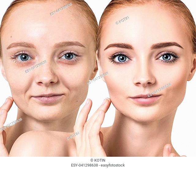 Woman before and after rejuvenation or plastic surgery. Skincare and anti-aging concept