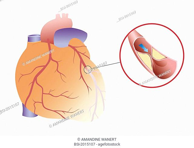 HEART ATTACK, DRAWING Myocardial infarction or angina caused by a plaque of atheroma. Angina, is due to a decrease of blood flow in a coronary artery caused ny...