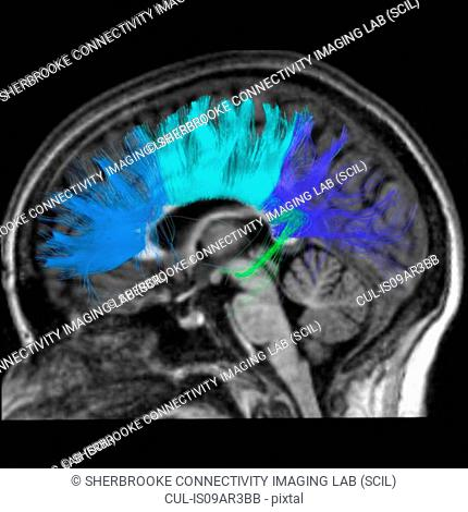 Side view of the corpus callosum fibers. The largest structure connecting left and right hemisphere