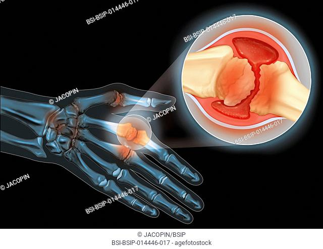 Illustration of a hand suffering from rheumatoid arthritis, with a close-up of the joint between the second metacarp and the proximal phalanx of the index...