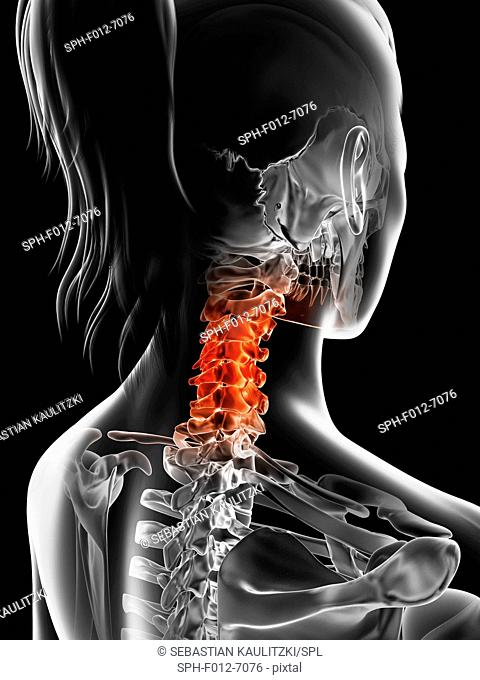 Human cervical spine pain, Illustration