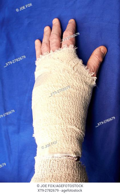 bandaged left hand after carpal tunnel injury surgery