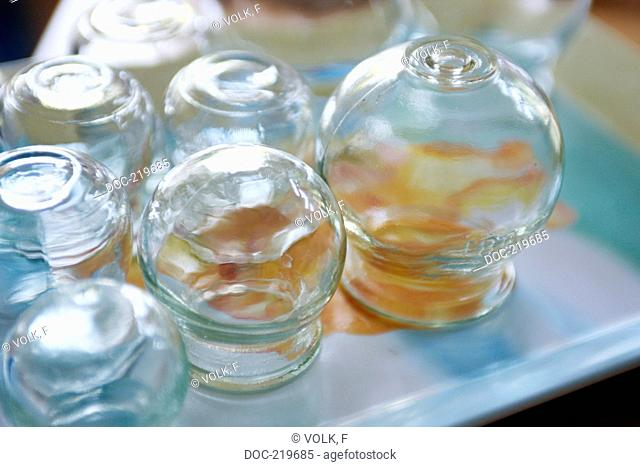 Traditional Chinese Medicine  TCM  - cupping - several cupping glasses