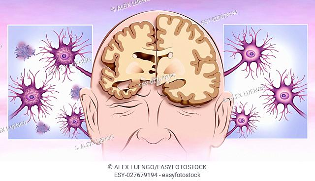 illustration on brain neuronal deterioration and reduction in Alzheimer&39, s disease