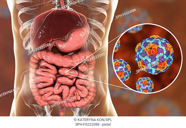 Hepatitis A viruses in intestine, illustration