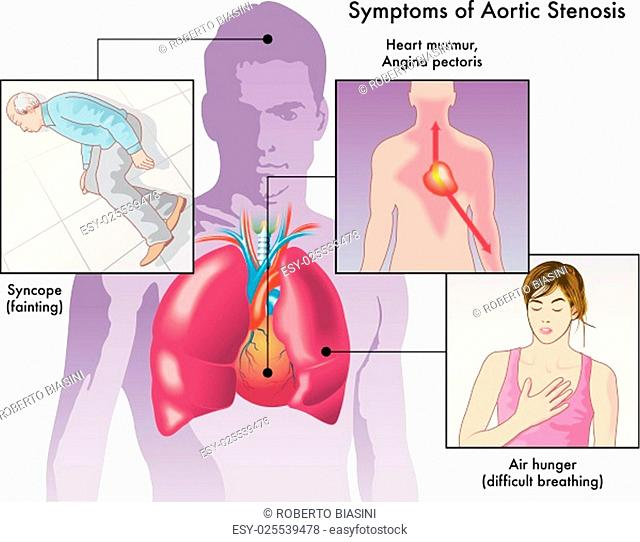 Aortic Stenosis Stock Photos And Images Age Fotostock