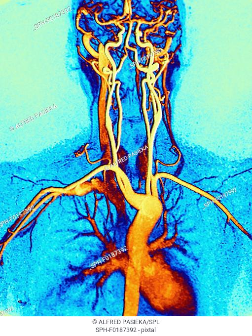 Chest, neck and head arteries. Coloured magnetic resonance angiography (MRA) scan of a normal carotid system of a 45 year old female