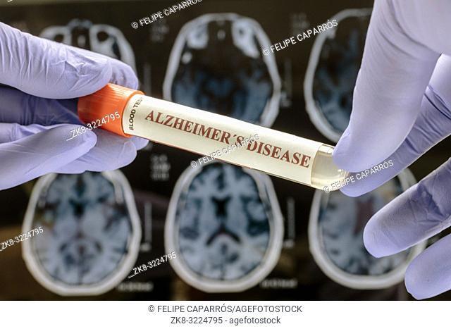 Scientist holds blood sample to investigate remedy against Alzheimer's disease, conceptual image