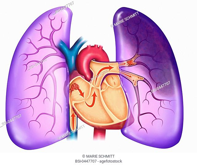 PULMONARY EMBOLISM, DRAWING Pulmonary embolism. A blood clot arrives at the heart and is sent, with the blood flow, towards the lungs