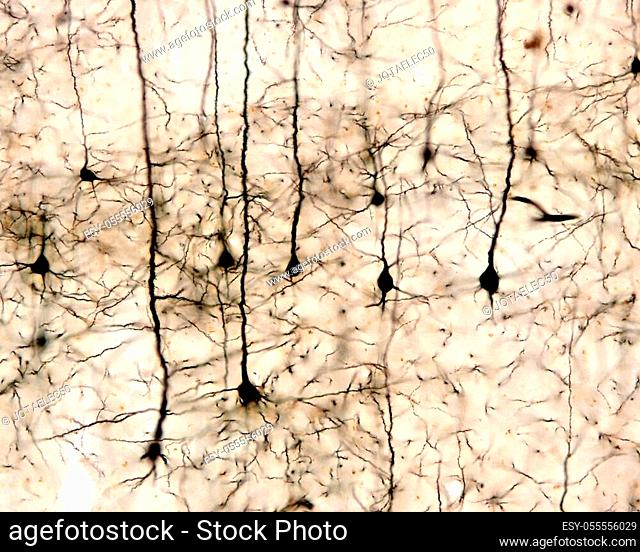 Pyramidal neurons of the cerebral cortex impregnated with the Golgi method. 20x at 10 mm