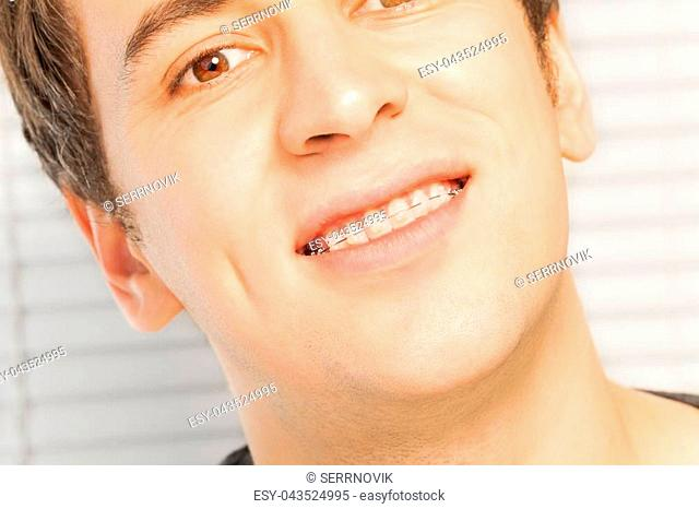 Close-up portrait of smiling young man with dental braces