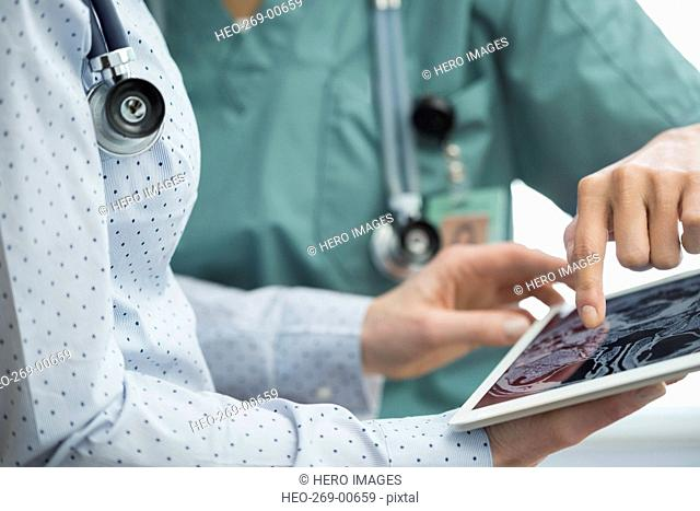 Female doctor nurse reviewing brain scan digital tablet