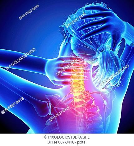 Neck pain, computer artwork