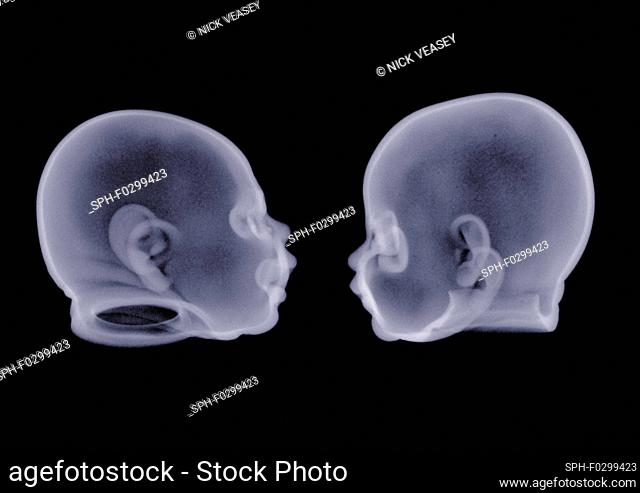 Two doll heads, X-ray