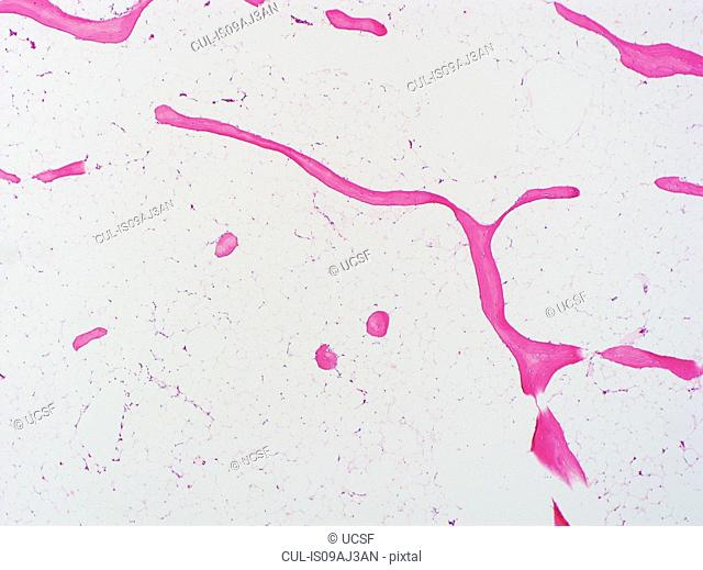 H&E stain, light microscopy, osteoporosis, bone