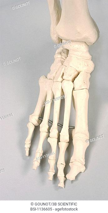 SKELETON, FOOT<BR>Anatomical model of the foot of an adult human skeleton.  At the ankle, the tarsus bones join the foot to the malleolus of the leg bones