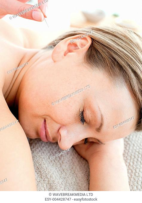 Close-up of a young woman in acupuncture therapy
