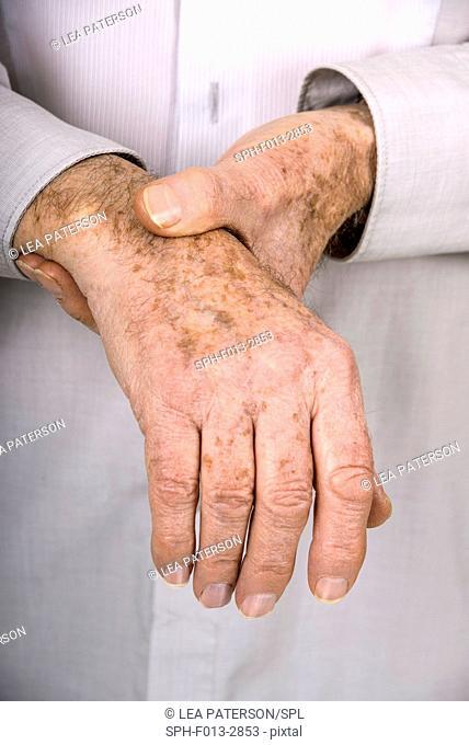 MODEL RELEASED. Senior man holding his wrist