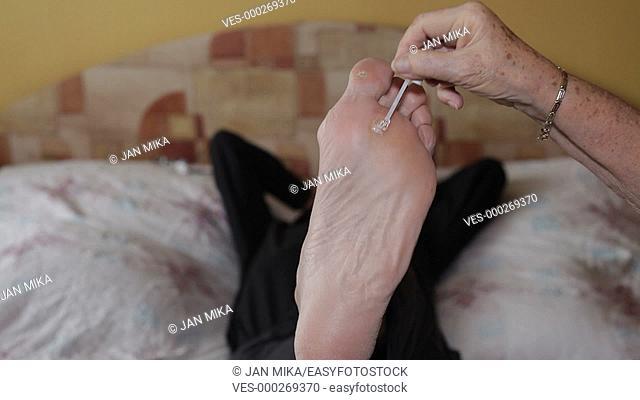 Medical treating of plantar warts