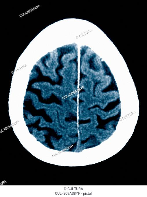 CT scan 84 year old male with Alzheimer's disease. CT shows brain atrophy with small gyri and large sulci
