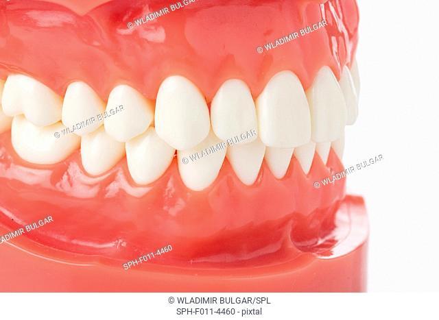 False teeth and gums