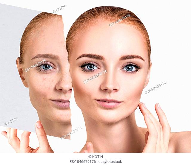 Compare of old photo with acne and new healthy skin of young woman