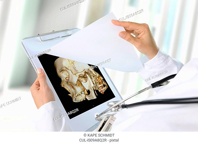 Doctor looking at image of skull