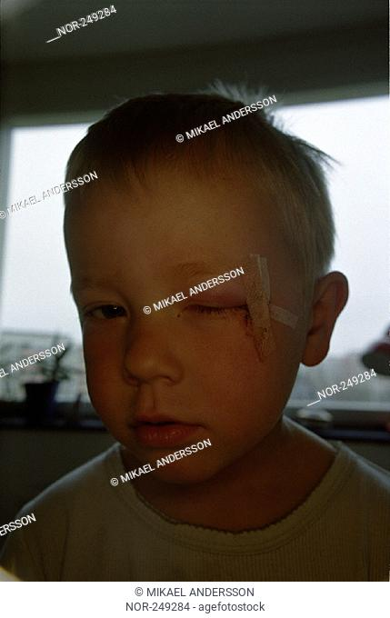 Boy with a wound near his left eye  Sweden