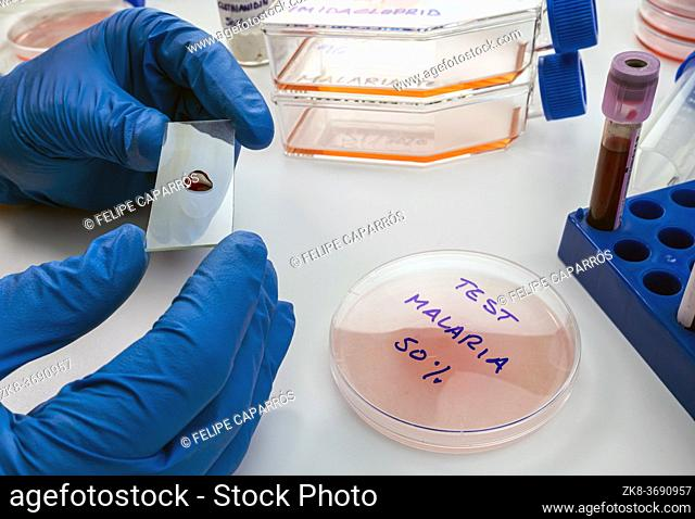 Scientist examines blood sample from sick person with malaria in laboratory, conceptual image