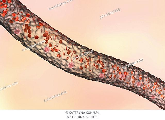 Blood vessel with blood cells, side view, computer illustration. Red blood cells and white blood cells inside a blood vessel