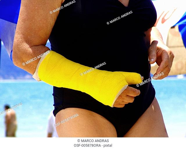 one person with a broken arm on the beach