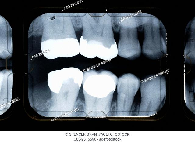 Bitewing x-rays show the crowns of the posterior teeth and the height of the alveolar bone and are commonly used to examine for cavities