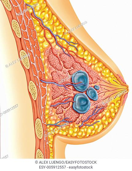 Illustration of a woman's chest where you can see three small bundles, this condition are called breast cyst