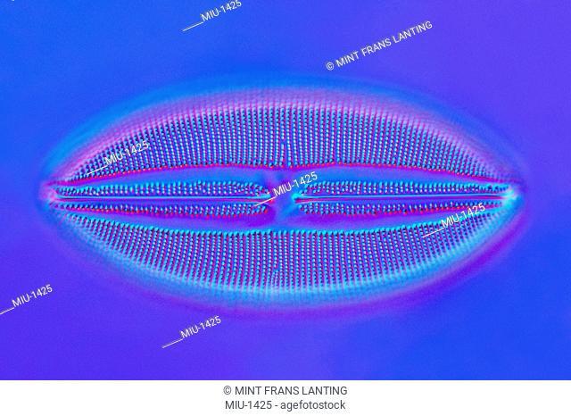 A biological culture, a Diatom, Lyrella lyra, Farlow Herbarium, Harvard University