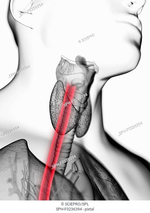 Illustration of a man's oesophagus