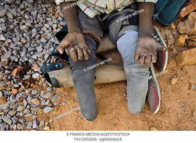 Leper begging ( Chhattisgarh state, India)