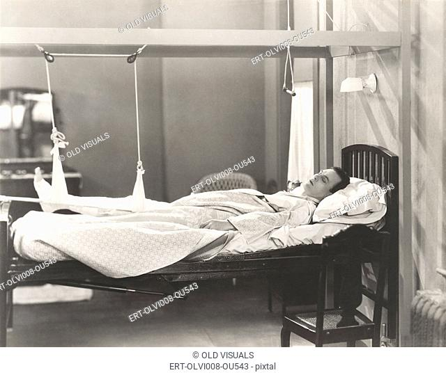 Man with fractured leg sleeping on hospital bed