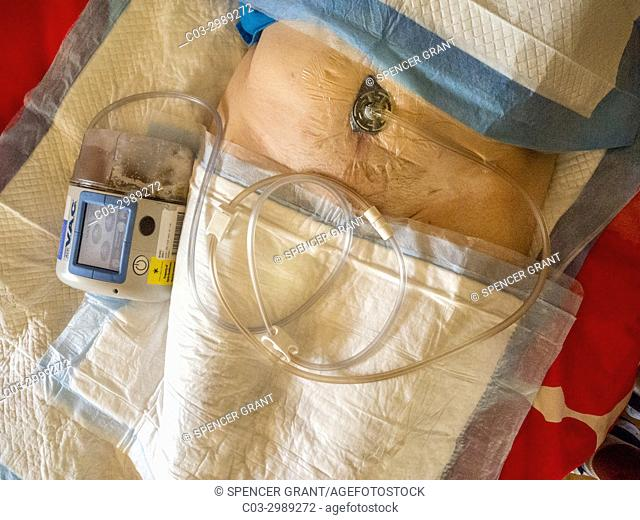 A Wound Vac vacuum pump speeds healing of a senior woman patient's abdominal surgical incision in Laguna Niguel, CA